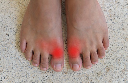 gout pain in foot