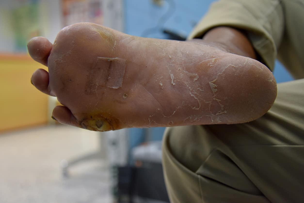 what diabetes does to your feet