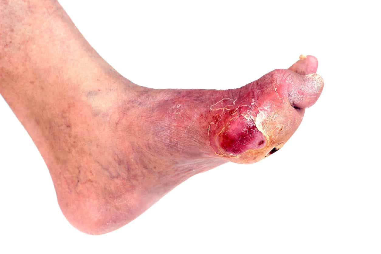 diabetes-foot-ulcer